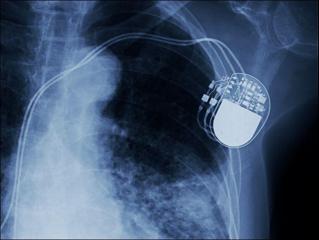 Röntgenaufnahme eines implantierten Schrittmachers.