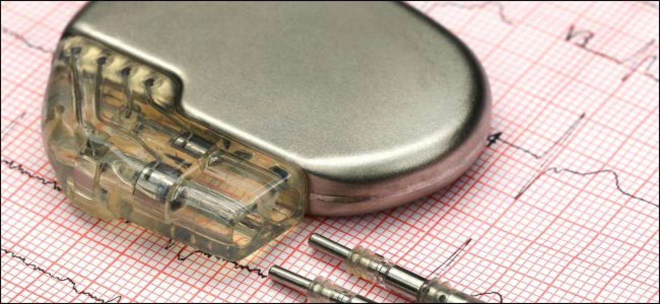 Können Herzschrittmacher (und andere medizinische Geräte) wirklich gehackt werden?