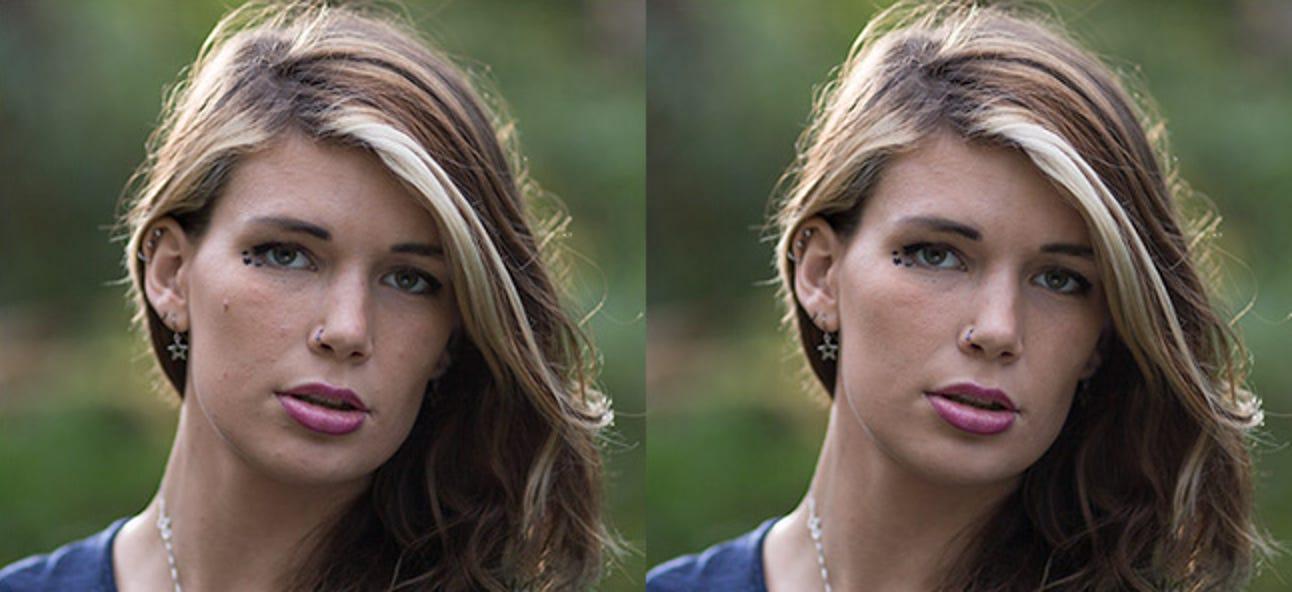 So entfernen Sie Akne und andere Fehler in Photoshop