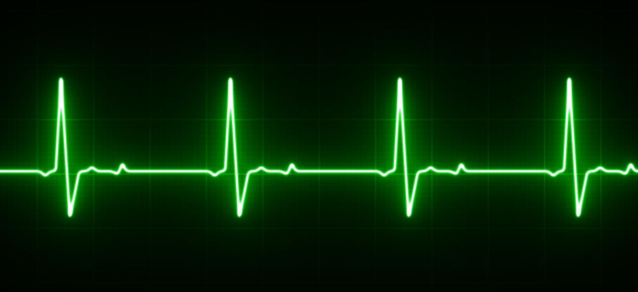 Was ist ein EKG und wie funktioniert es in der neuen Apple Watch?